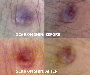 Stemulation Facial Serum | Before/After | Truth In Aging