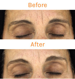 Clinical Studies on the Truth Vitality Lux Renew