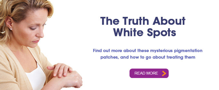 The Truth About White Spots