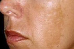 Skin discolouration dark patches