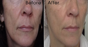 Cristina Volu-Lift Recontouring Face Cream with Ceramides