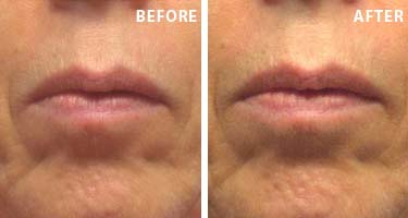 Royal Nectar Moisturizing Face Lift | Before/After | Truth In Aging