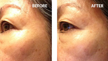 Your Best Face Advanced CE Concrentrate | Before/After | Truth In Aging