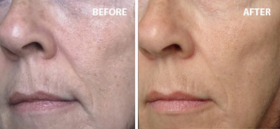 Stemulation Boost Creme | Before/After | Truth In Aging