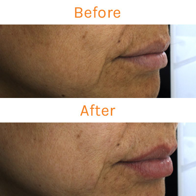 lux renew clinical trial, before and after