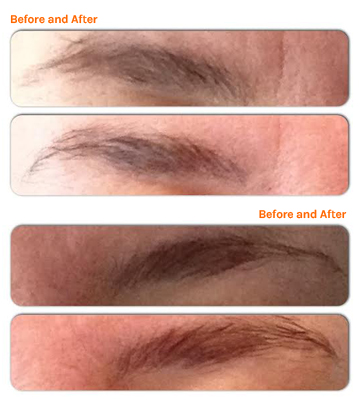 Janelle's brows, before and after